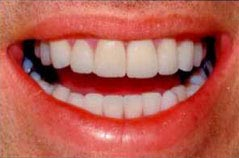 Achieving The Perfect Smile