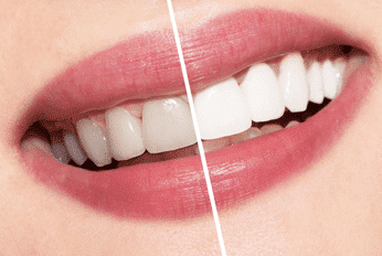 Why it's best to go to your dentist for Tooth Whitening!